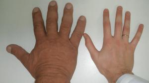 Akromegalijos požymiai