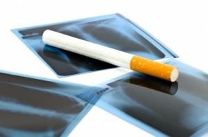 Rūkymo žala maskuojama