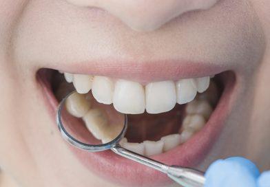 Plombos gali susilpninti dantis